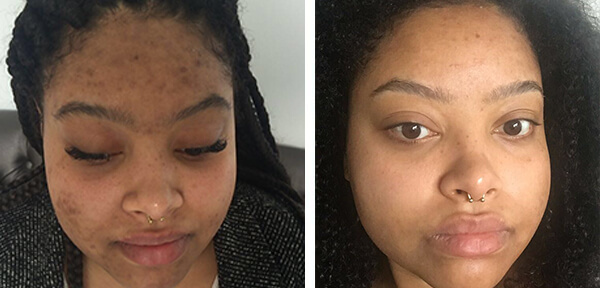 tca-peeling-before-after