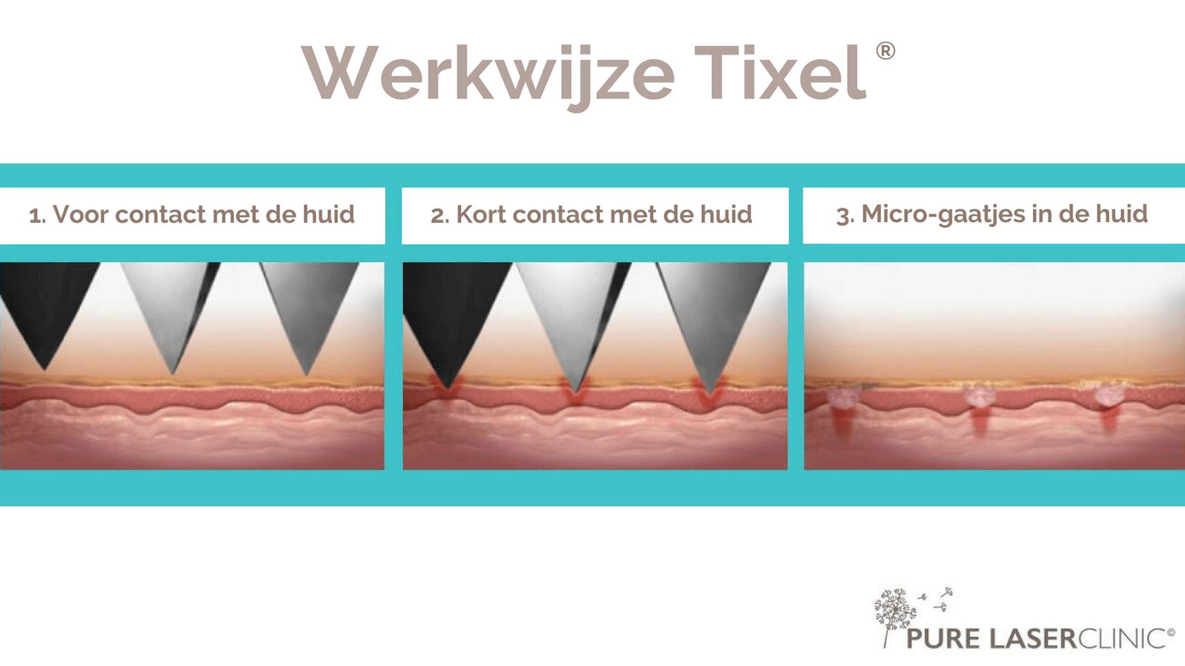 tixel behandeling