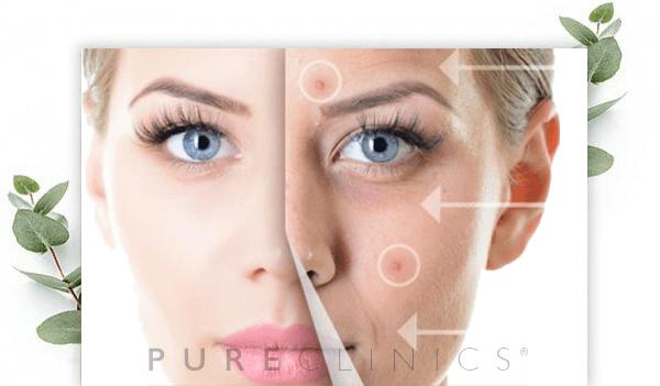 pure-acnetherapie